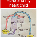 Ten facts about HLHS and my heart child