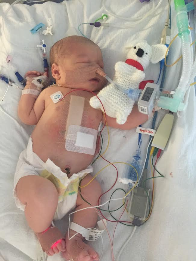 Baby Arthur recovering from heart surgery