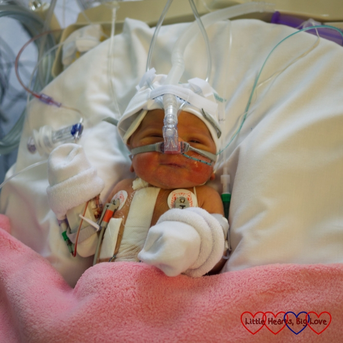 Jessica on CPAP in PICU recovering from her first open heart surgery
