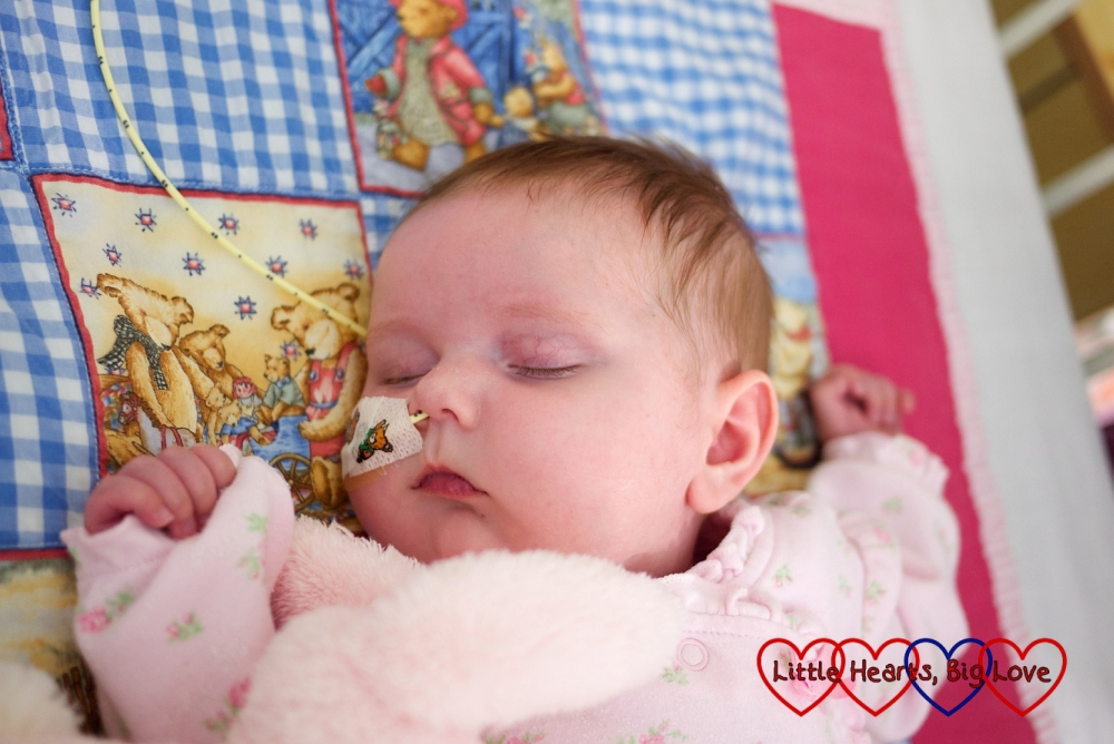 A sleeping baby Jessica with an NG tube in situ