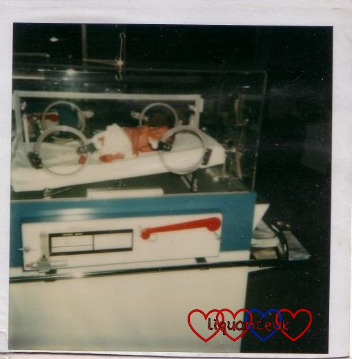 Me in an incubator when I was a newborn baby