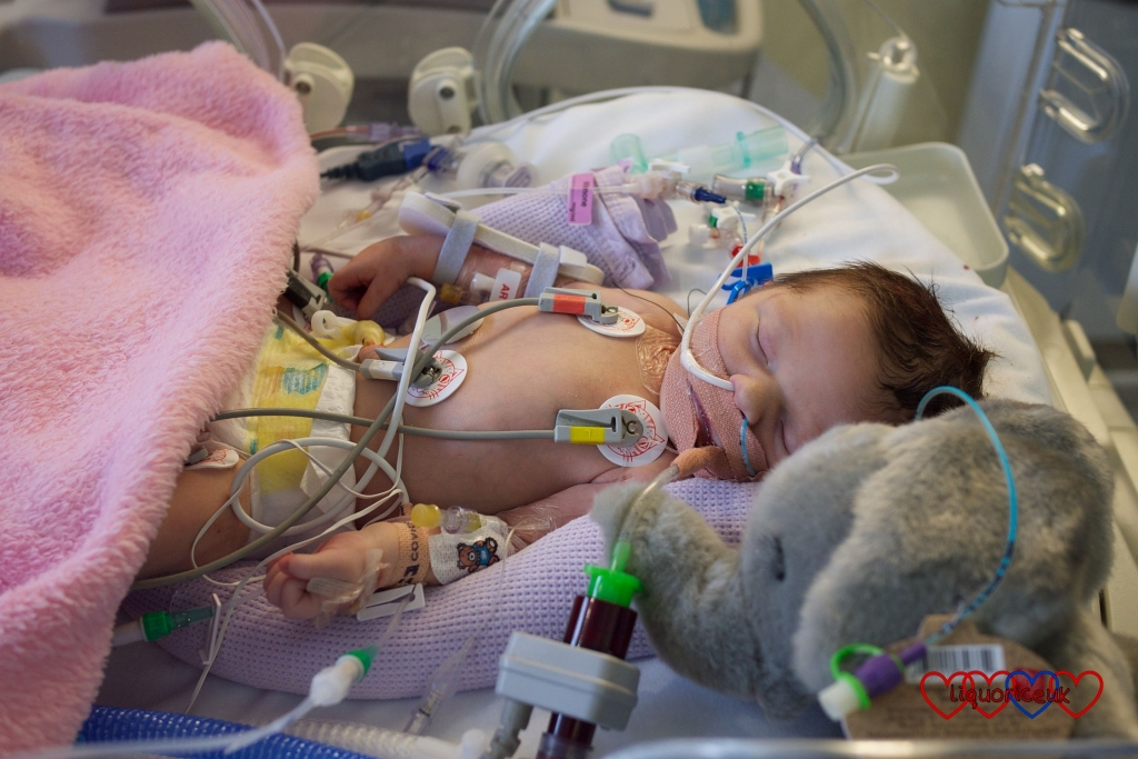 Jessica on PICU just before her first open heart surgery