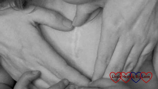 A black and white photo of my hands forming a heart around Jessica's zipper scar