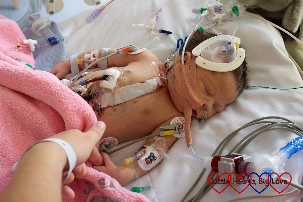 Jessica in PICU after her first heart surgery