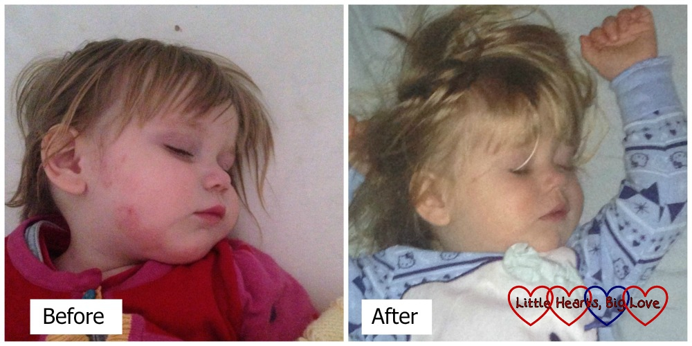 Easing Eczema - what worked for us. Before and after - Little Hearts, Big Love