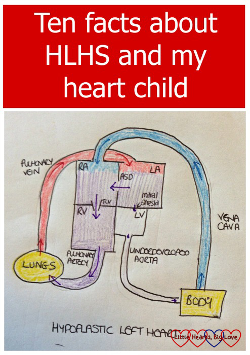 Ten facts about HLHS and my heart child - Little Hearts, Big Love