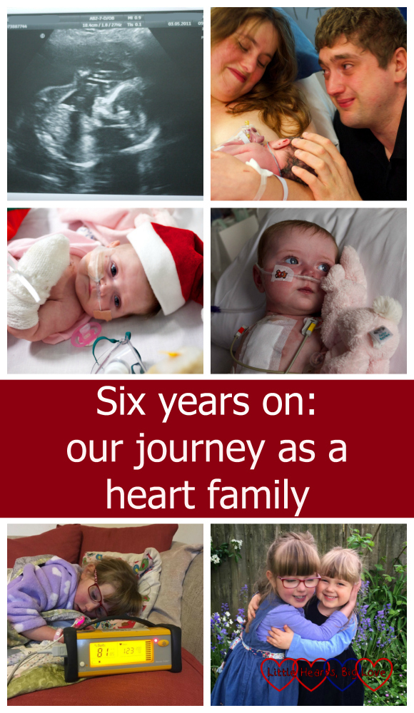 "A collage of images from our heart family journey - the 20 week scan picture; me and hubby with a newborn Jessica; Jessica wearing a Santa hat on her first Christmas in hospital; Jessica recovering from her third open-heart surgery; Jessica having her sats checked and Jessica and Sophie having a cuddle. ""Six years on: our journey as a heart family"""