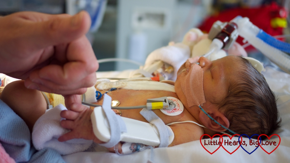 A picture of newborn Jessica holding her daddy's hand in intensive care following her first open-heart surgery.