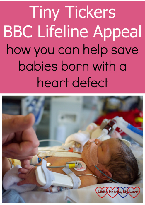"A picture of newborn Jessica holding her daddy's hand in intensive care following her first open-heart surgery. ""Tiny Tickers BBC Lifeline Appeal - how you can help save babies born with a heart defect"""
